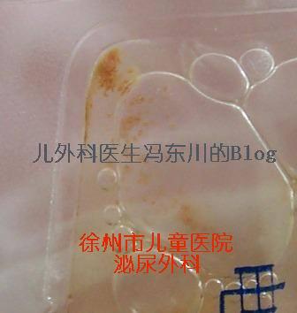 膀胱内、可疑与奶粉相关的结石 (续) - lancet19 - lancet19的博客