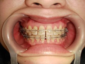 ●牙周病正畸应注意的事项?