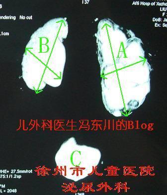 双侧肾盂输尿管交界部梗阻(肾积水)4 - lancet19 - lancet19的博客
