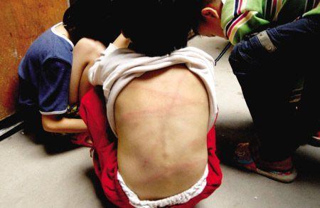 5岁幼女遭父亲虐待 (图) - 玄缘精舍 - 玄缘子