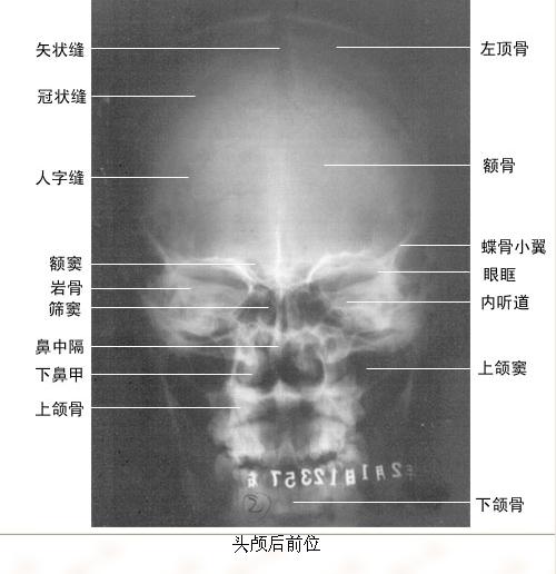 真正裸图:正常X线解剖 - 老针 - 老针:针刀.针灸.浮针.埋线