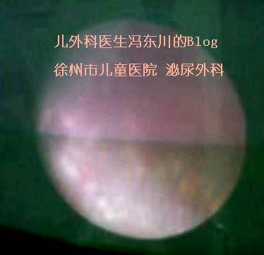 又一例双肾奶粉结石少尿冲洗的病例 - lancet19 - lancet19的博客
