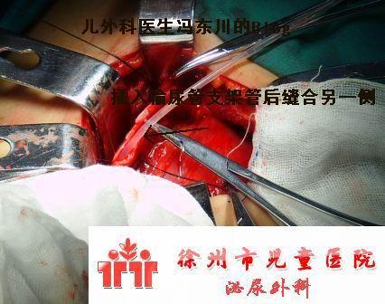 新生儿巨大肾积水(图解手术过程) - lancet19 - lancet19的博客