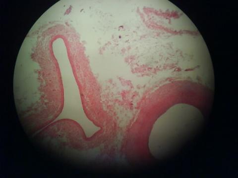 显微镜下嘅映像