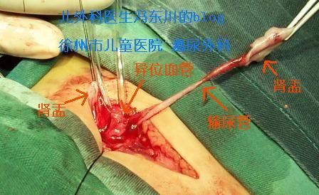 图解蹄铁形肾合并肾积水手术 - lancet19 - lancet19的博客